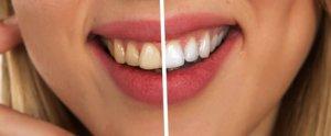 Consells per tenir una bona higiene bucodental i un somriure més blanc que abans