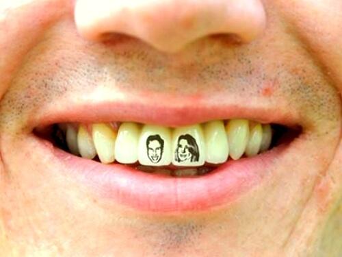 Els tatuatges a les dents es una moda al món bucodental