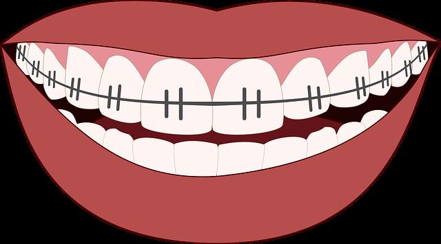 A Asia es posen una falsa ortodoncia per aparentar diners